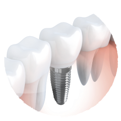 Dental Implants from Surprise Smiles
