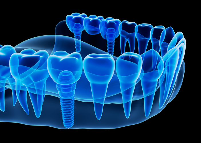 Diagram of Dental Implants from Surpise Smiles in Surprise AZ
