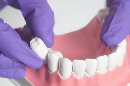 The Point of Splitting Teeth for An Extraction