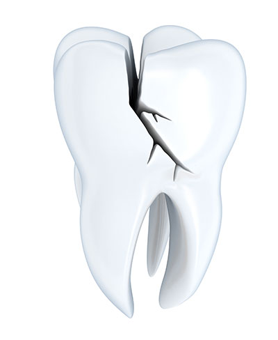 When a Tooth Cracks in Half, Can It Be Saved?