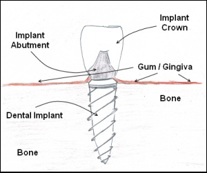 A diagram of how a dental implant works!